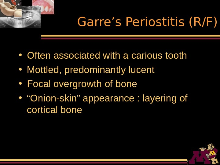 Garre's Periostitis (R/F) • Often associated with a carious tooth • Mottled, predominantly lucent
