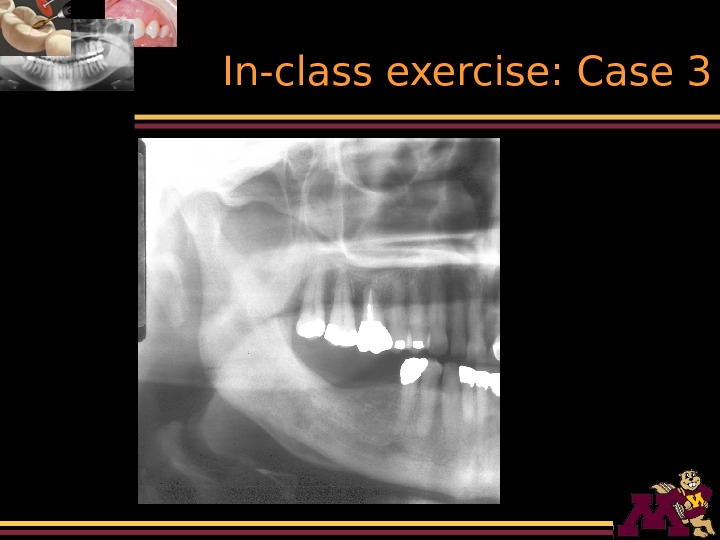 In-class exercise: Case 3