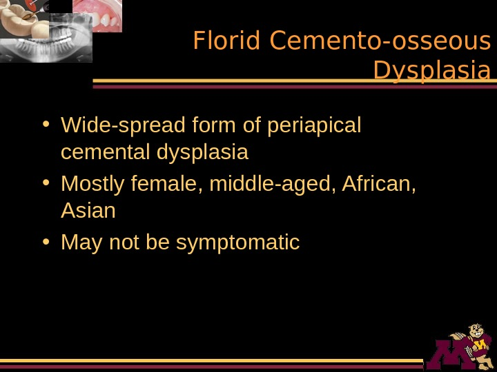 Florid Cemento-osseous Dysplasia • Wide-spread form of periapical cemental dysplasia • Mostly female, middle-aged,