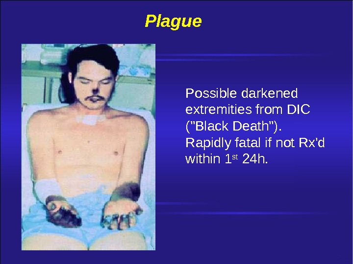 Plague Possible darkened extremities from DIC (Black Death). Rapidly fatal if not Rx'd within 1 st
