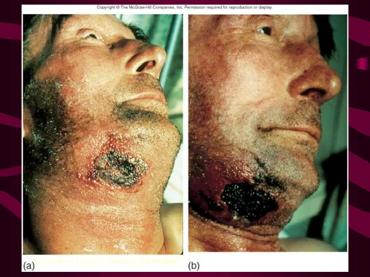 30 Cutaneous anthrax showing the eschar