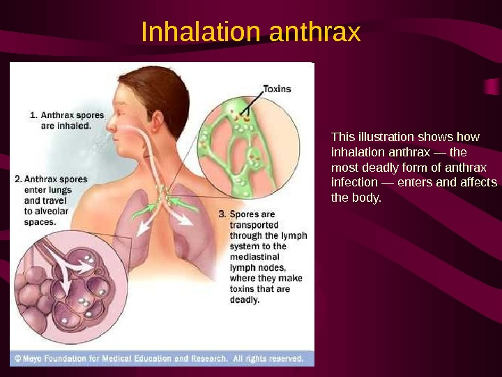 Inhalation anthrax This illustration shows how inhalation anthrax — the most deadly form of anthrax infection