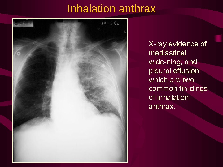 X-ray evidence of mediastinal wide-ning, and pleural effusion which are two common fin-dings of inhalation anthrax.