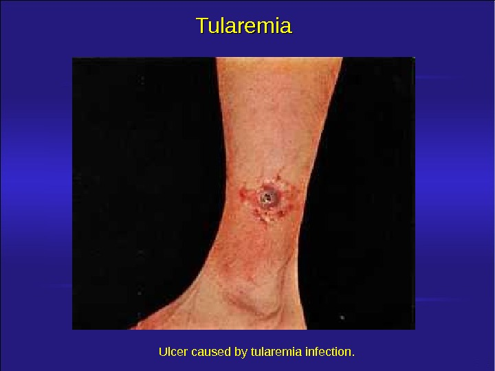 Tularemia Ulcer caused by tularemia infection.