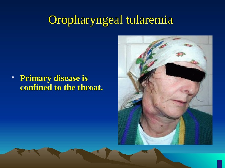 Oropharyngeal tularemia • Primary disease is confined to the throat.