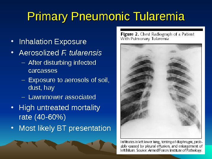 Primary Pneumonic Tularemia • Inhalation Exposure • Aerosolized F. tularensis – After disturbing infected carcasses –