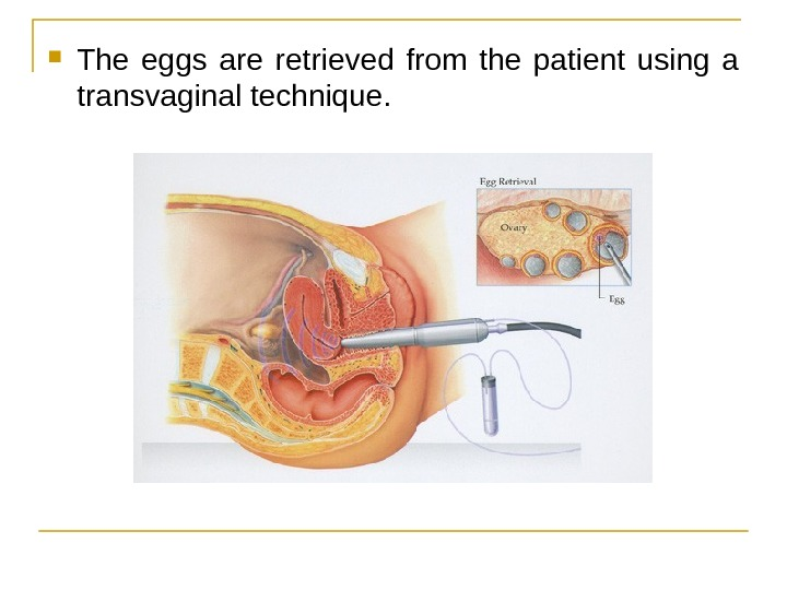 The eggs are retrieved from the patient using a transvaginal technique.