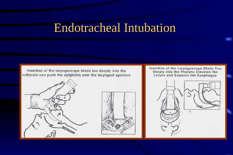 Endotracheal Intubation