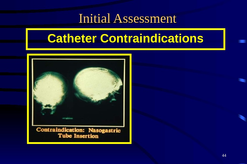 44 Initial Assessment Catheter Contraindications