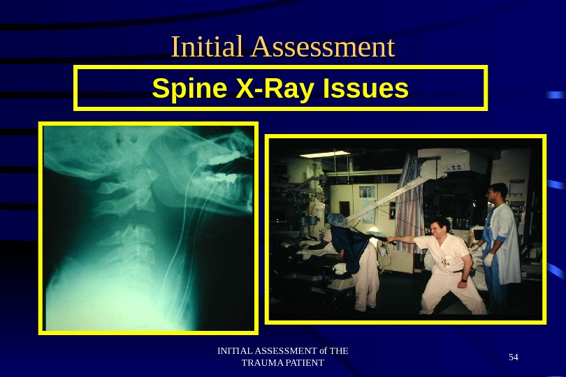 INITIAL ASSESSMENT of THE TRAUMA PATIENT 54 Initial Assessment Spine X-Ray Issues
