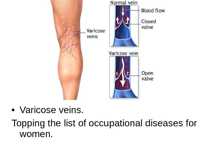 • Varicose veins.  Topping the list of occupational diseases for women.