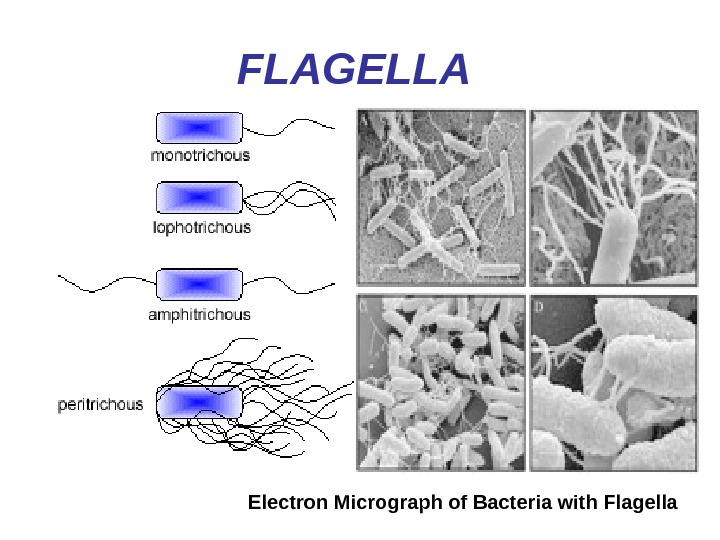 FLAGELLA  Electron Micrograph of Bacteria with Flagella
