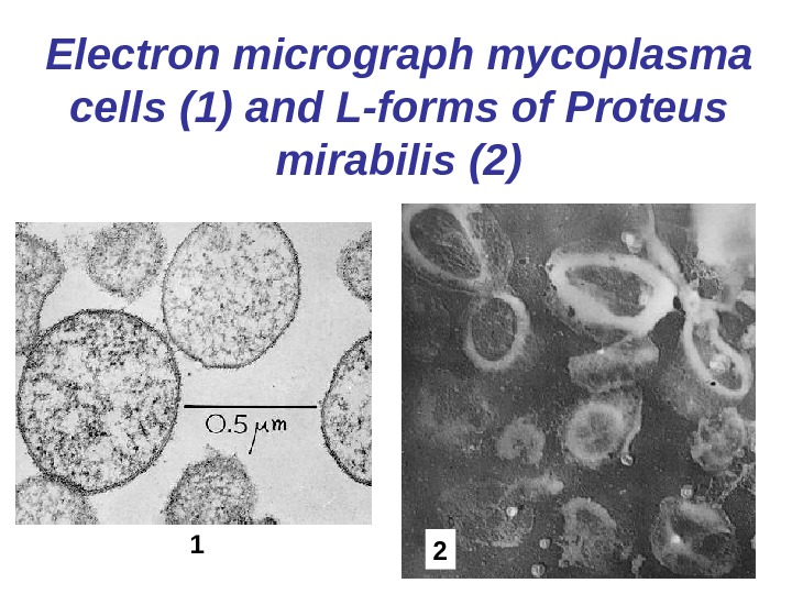 Electron micrograph mycoplasma cells  (1) and L-forms of Proteus mirabilis (2) 1 2