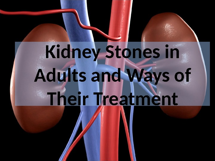 Kidney Stones in Adults and Ways of Their Treatment