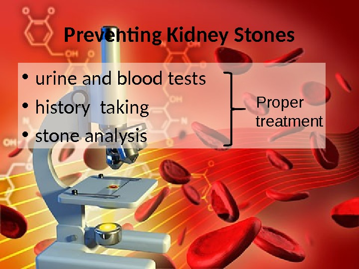 Preventing Kidney Stones • urine and blood tests • history  taking • stone analysis Proper