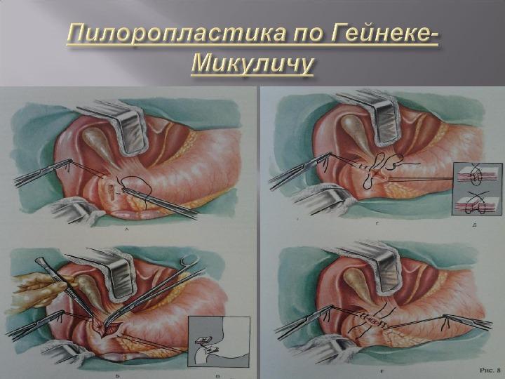 Стеноз выходного отдела желудка