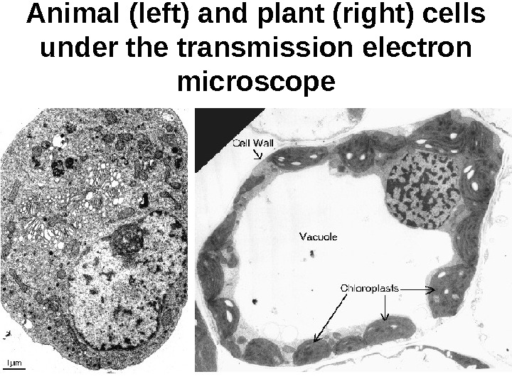 Animal (left) and plant (right) cells under the transmission electron microscope