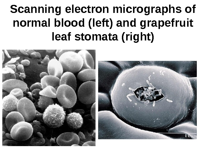 Scanning electron micrographs of normal blood (left) and grapefruit leaf stomata (right)