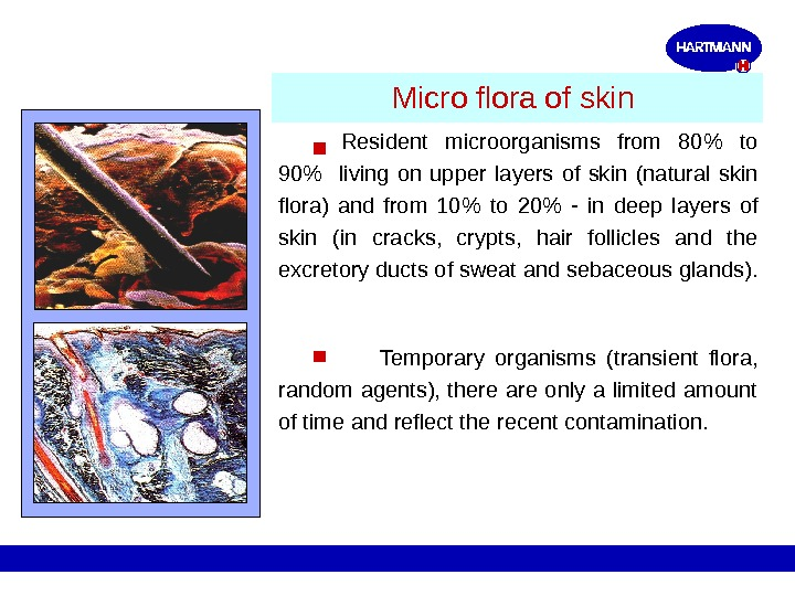 Micro flora of skin Resident microorganisms  from  80 to  90  living on