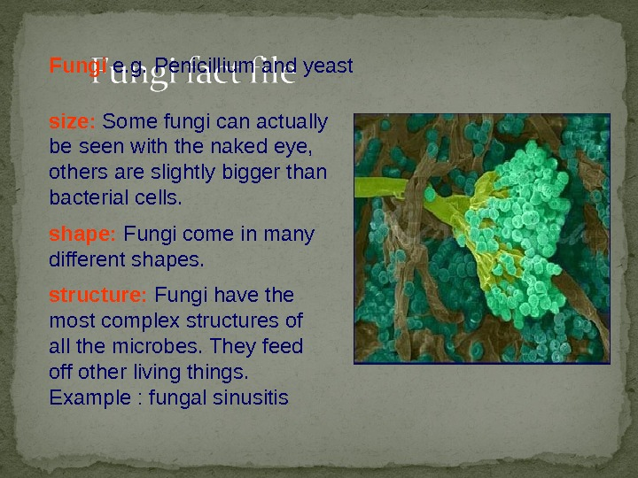 size:  Some fungi can actually be seen with the naked eye,  others are slightly