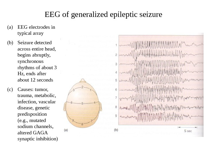 EEG of generalized epileptic seizure (a) EEG electrodes in typical array (b) Seizure detected