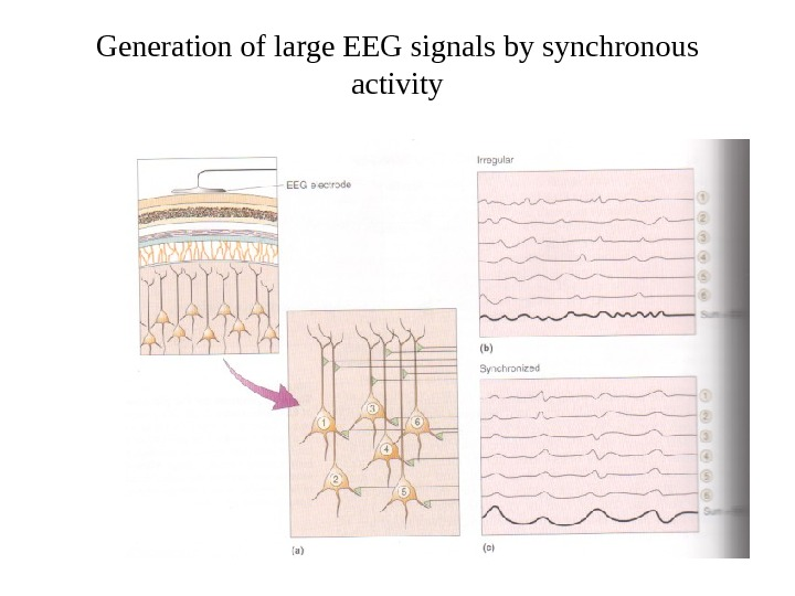 Generation of large EEG signals by synchronous activity
