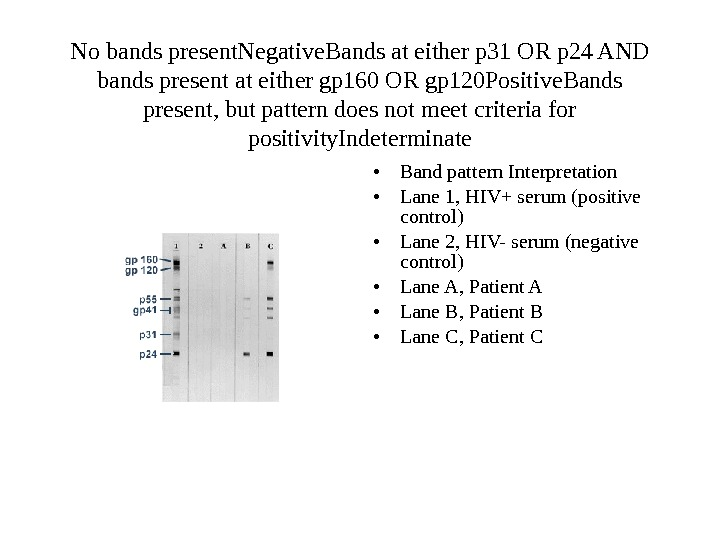 No bands present. Negative Bands at either p 31 OR p 24 AND bands