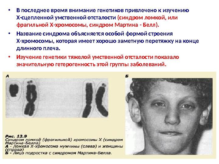 Синдром Ломкой Х-Хромосомы