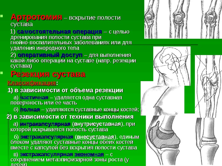 причина боли в коленном суставе