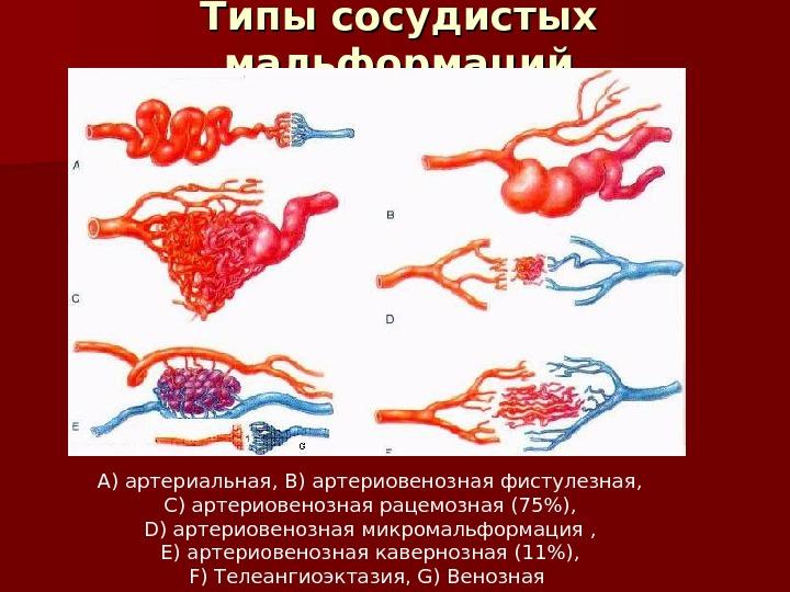 Артериовенозная аневризма