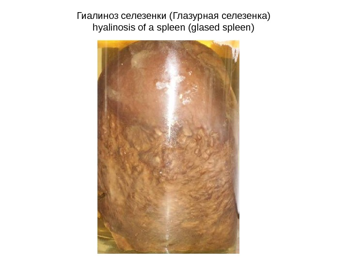 Гиалиноз селезенки (Глазурная селезенка) hyalinosis of a spleen (glased spleen)
