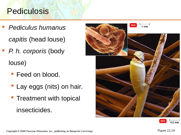 Copyright © 2006 Pearson Education, Inc. , publishing as Benjamin Cummings Pediculosis Pediculus humanus capitis (head
