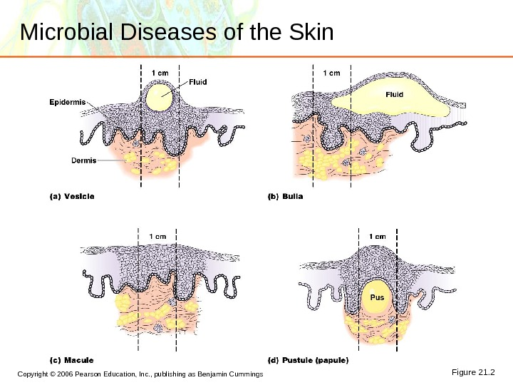 Copyright © 2006 Pearson Education, Inc. , publishing as Benjamin Cummings Microbial Diseases of the Skin