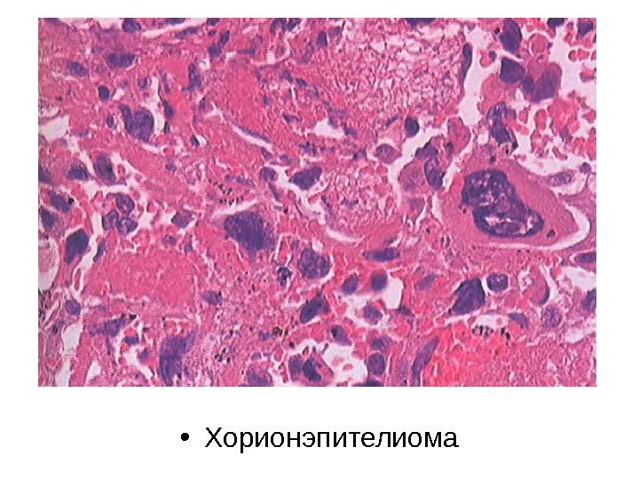 Хорионэпителиома
