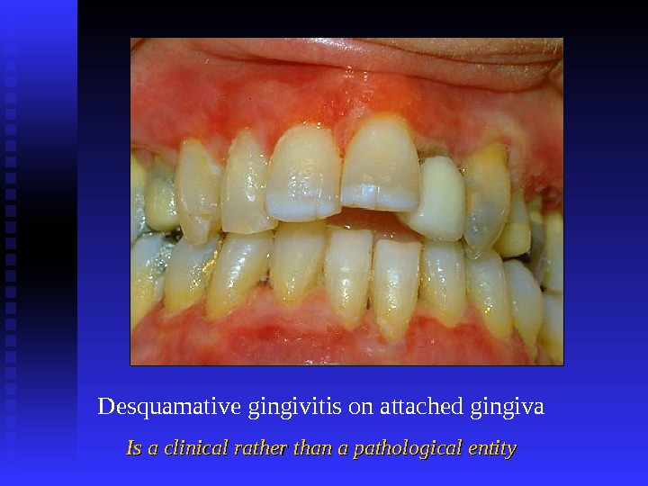 Desquamative gingivitis on attached gingiva Is a clinical rather than a pathological entity