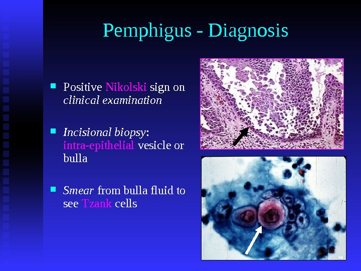 Pemphigus - Diagnosis Positive Nikolski sign on clinical examination Incisional biopsy :  intra-epithelial vesicle or