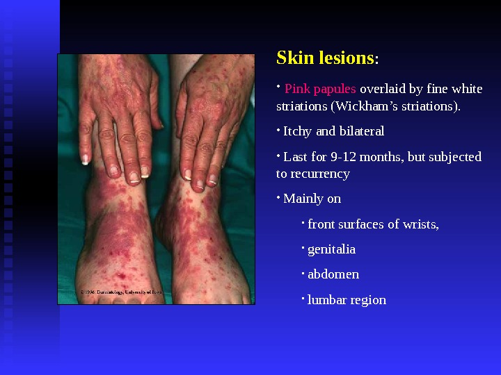 Skin lesions :  •  Pink papules overlaid by fine white striations (Wickham's striations).