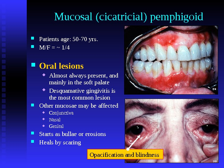 Mucosal (cicatricial) pemphigoid Patients age: 50 -70 yrs.  M/F = ~ 1/4 Oral lesions Almost
