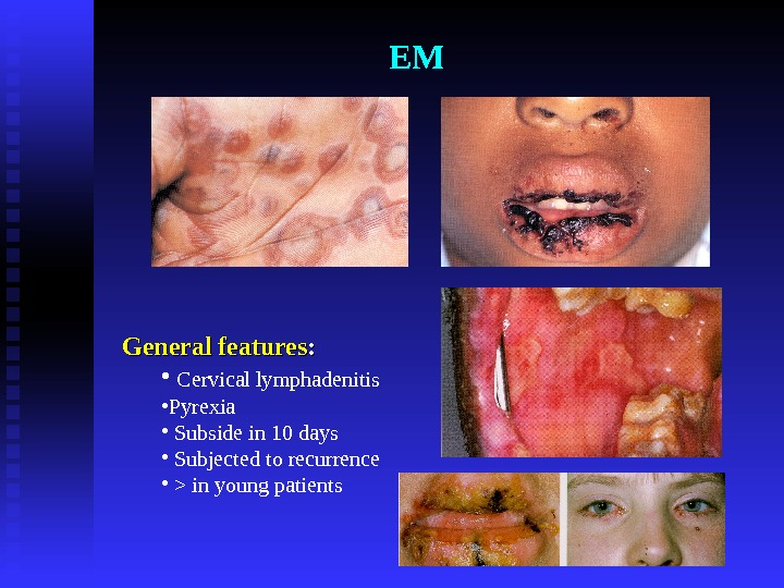 EM General features : :  •  Cervical lymphadenitis • Pyrexia •  Subside in