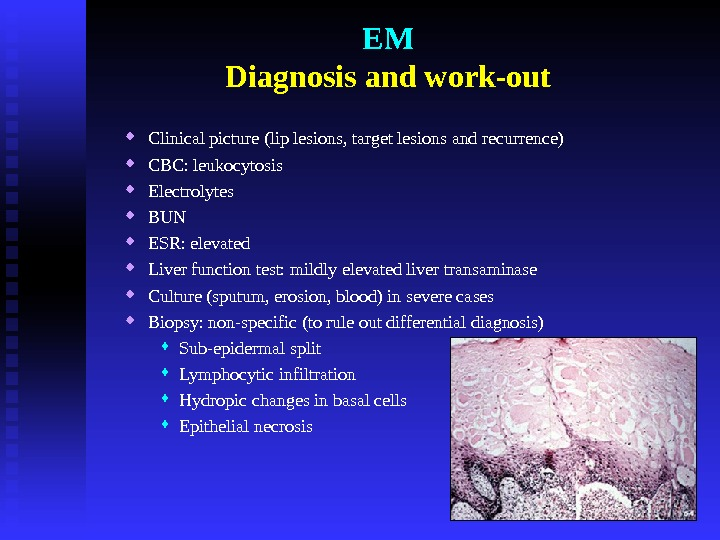 EM Diagnosis and work-out Clinical picture (lip lesions, target lesions and recurrence) CBC: leukocytosis Electrolytes BUN