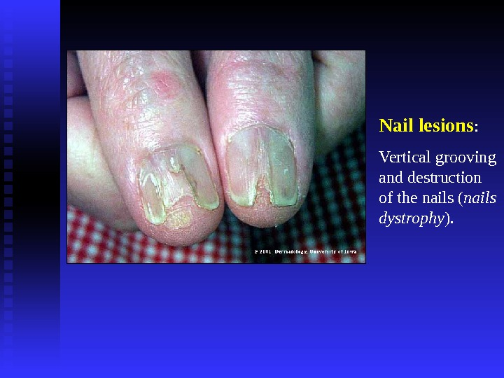 Nail lesions : Vertical grooving and destruction of the nails ( nails dystrophy ).