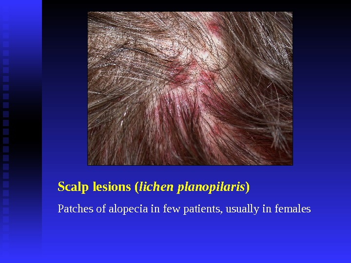 Scalp lesions ( lichen planopilaris ) Patches of alopecia in few patients, usually in females