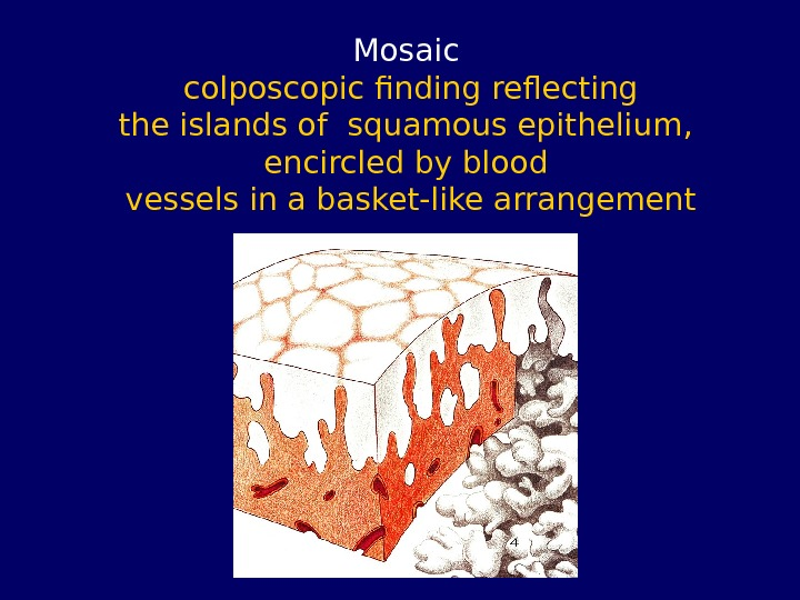 Mosaic colposcopic finding reflecting the islands of squamous epithelium,  encircled by blood vessels in a