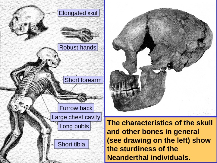 The characteristics of the skull and other bones in general (see drawing on the