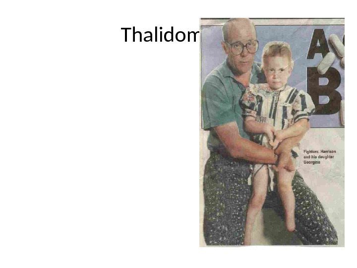 Thalidomide  • Early 1960's given to pregnant women to treat morning sickness • Later found
