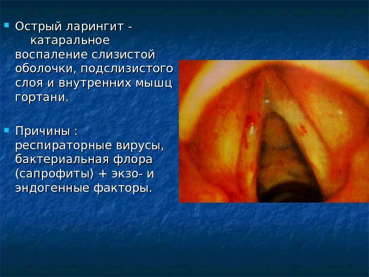 Миогемоглобин