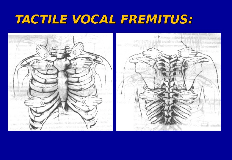 TACTILE VOCAL FREMITUS: