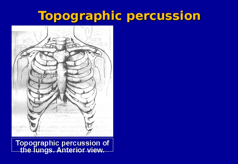 Topographic percussion of the lungs. Anterior view. Topographic percussion