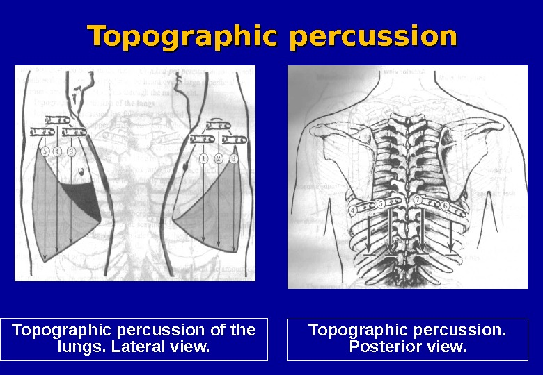 Topographic percussion of the lungs. Lateral view. Topographic percussion.  Posterior view. Topographic percussion