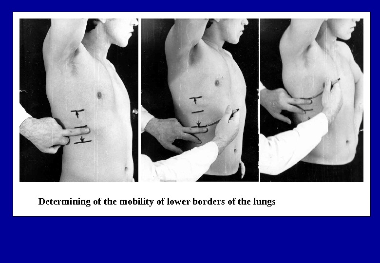 Determining of the mobility of lower borders of the lungs
